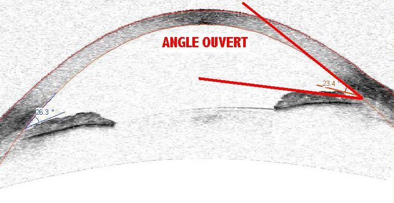 angle ouvert