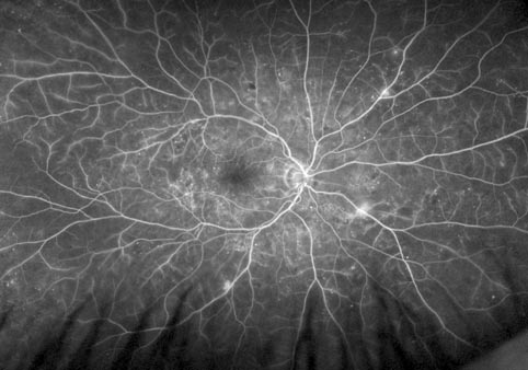 rétinopathie diabète oeil